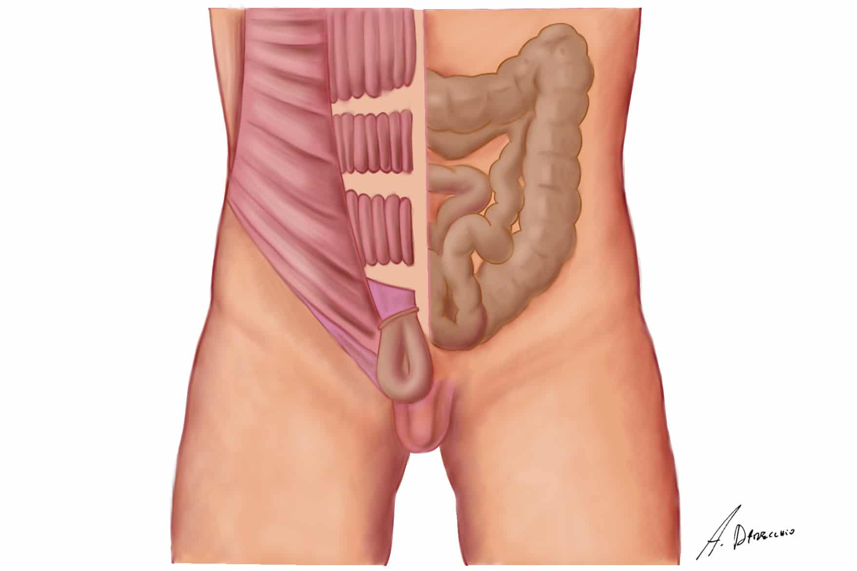 http://www.internationalherniacare.com/wp-content/uploads/2016/04/3.jpg