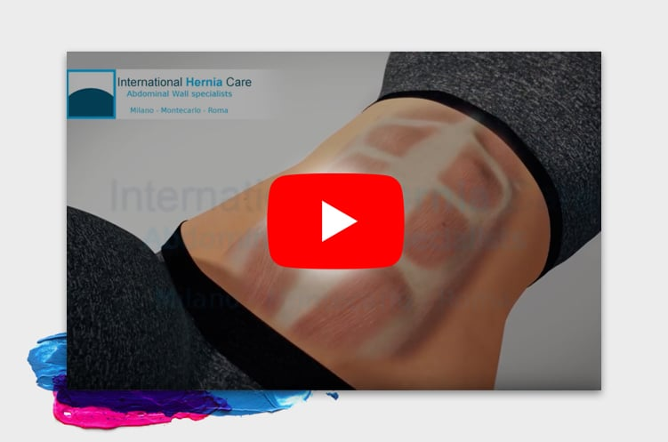 http://www.internationalherniacare.com/wp-content/uploads/2018/04/video1-3-11.jpg