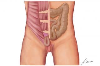 Inguinal Hernia - International Hernia Care
