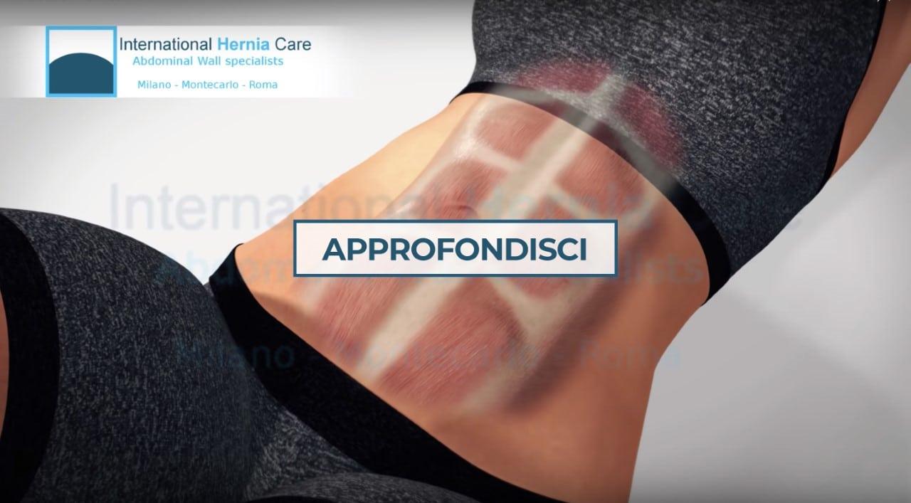 https://www.internationalherniacare.com/wp-content/uploads/2019/12/thumbnail_2.jpg